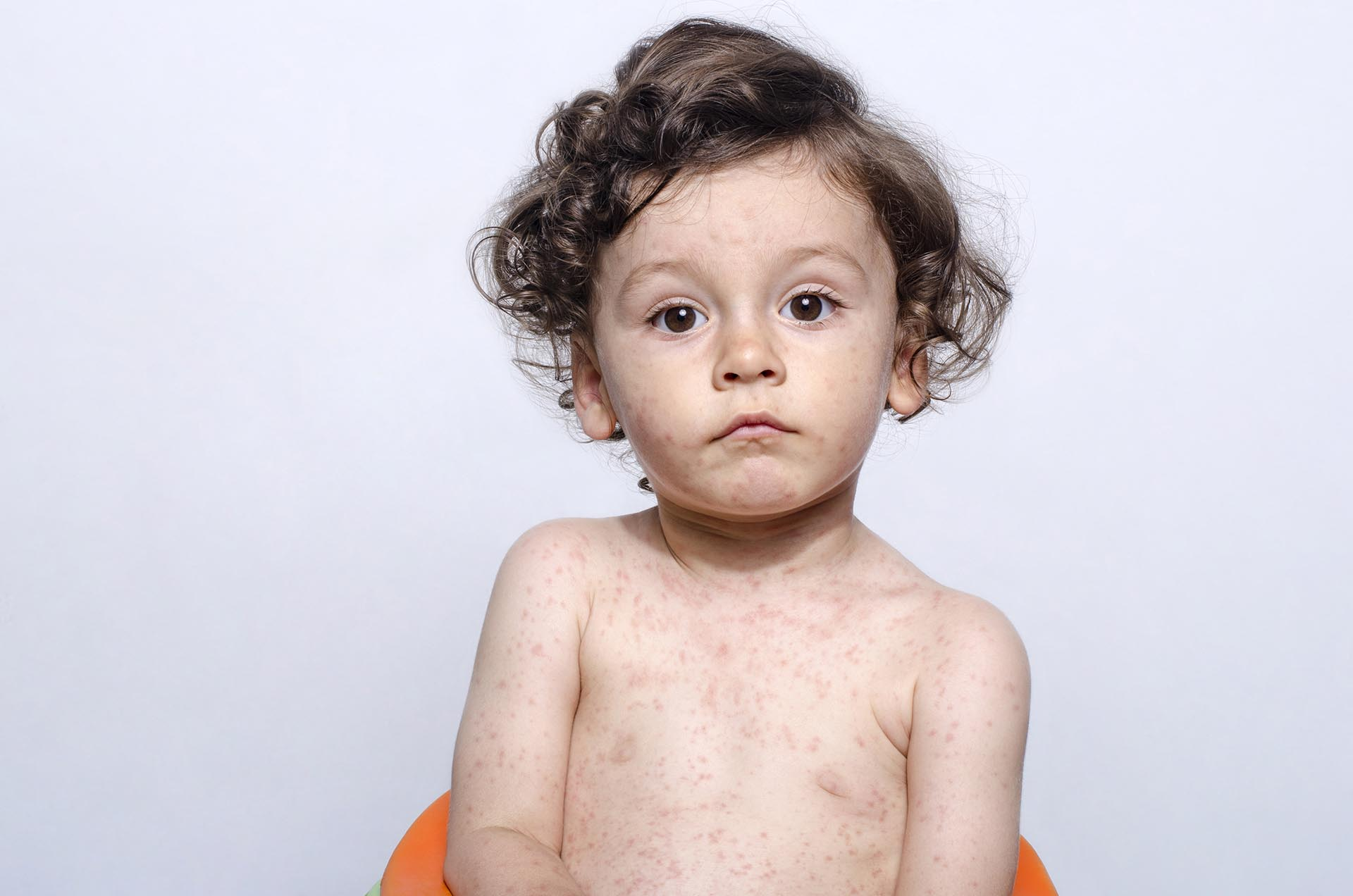 Mumps, Measles, Rubella and Chickenpox
